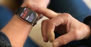 "Apple Watch Saves Seniors' Life in US Thanks to ""Fall Detection"" Feature"